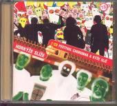 HORKYZE SLIZE  - 2xCD KYZE SLIZ / FESTIVAL CHOROBNA