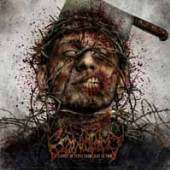 CRANIOTOMY  - CD SUPPLY OF FLESH CAME JUST IN TIME